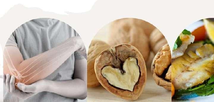 Mit együnk csontjaink egészségéért?